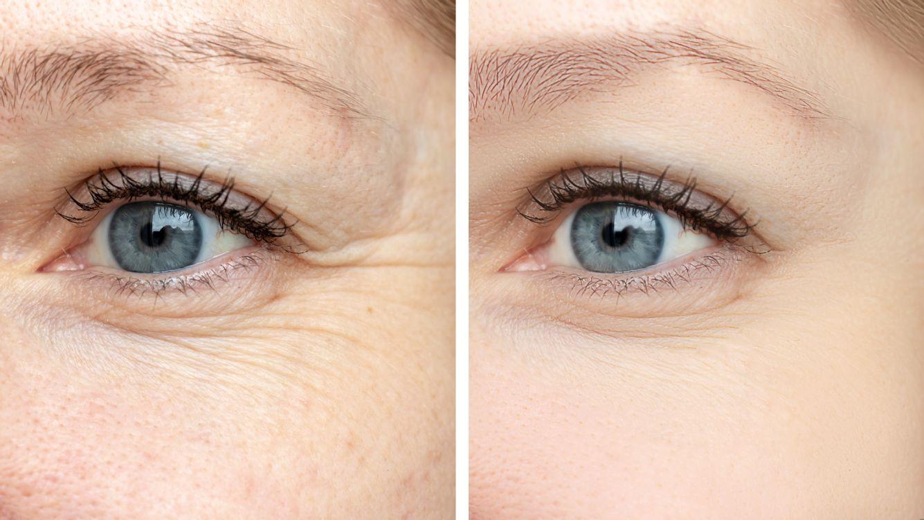 Krähenfüße vor und nach der Behandlung mit Botox