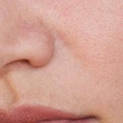 Große Poren